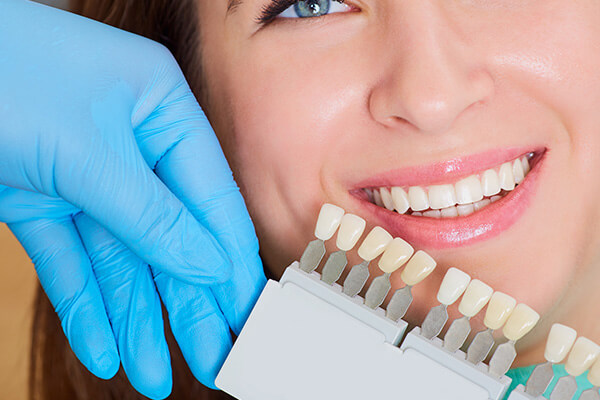 The dentist comparing a palette of different shades of white